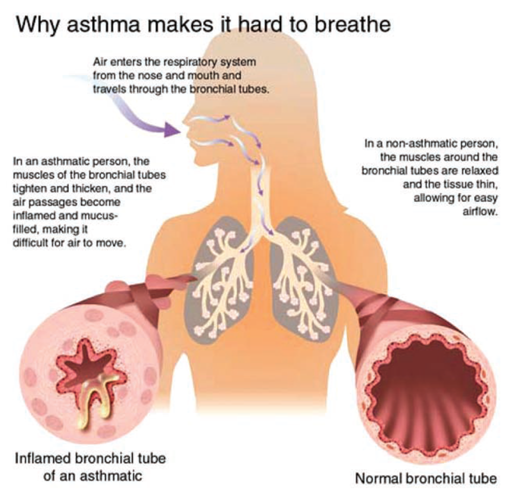 Why asthma makes it hard to breathe